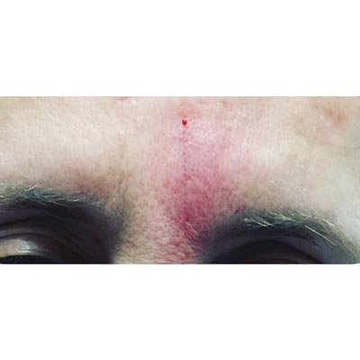 After Forehead Filler Treatment - 1