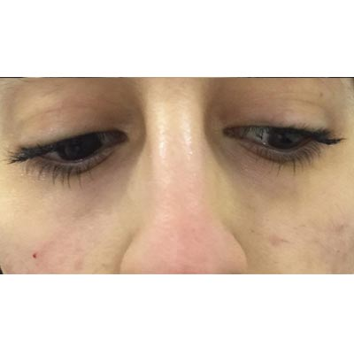 After Under Eye Filler Treatment - 10