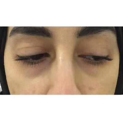 Before Under Eye Filler Treatment - 10