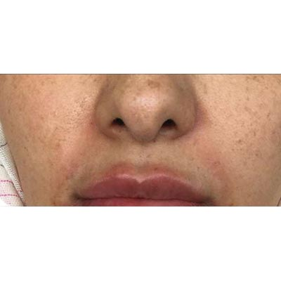 After Nasolabial Filler Treatment - 2