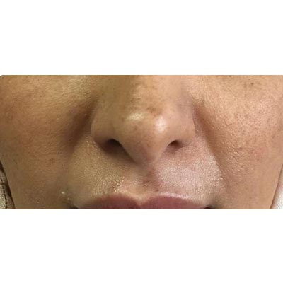 Before Nasolabial Filler Treatment - 2