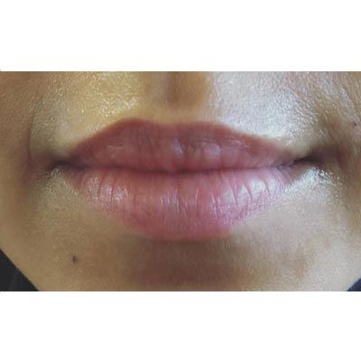 Before Lip Filler Treatment - 8