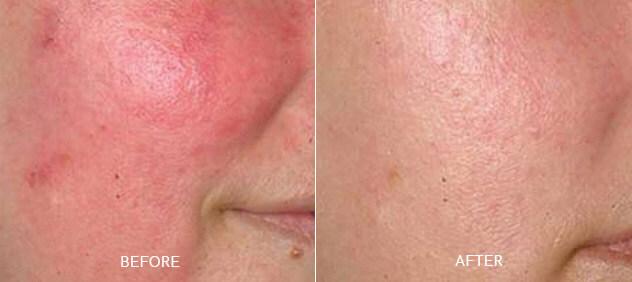 Facial Redness Treatment