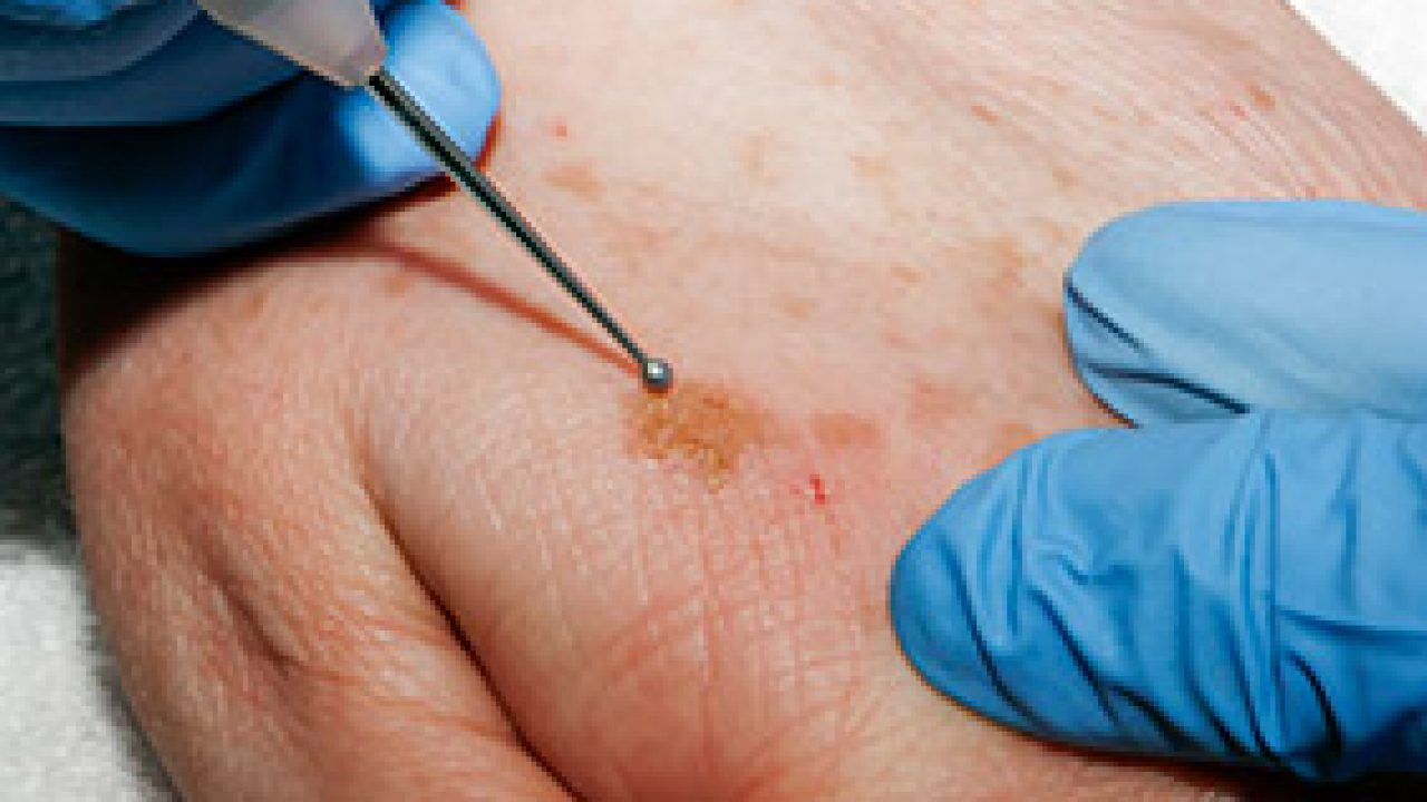 Skin Cancer Mississauga Melanoma Basal Cell Carcinoma