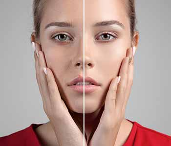 Get a more youthful appearance with under eye fillers for hollows under eyes in Mississauga, ON