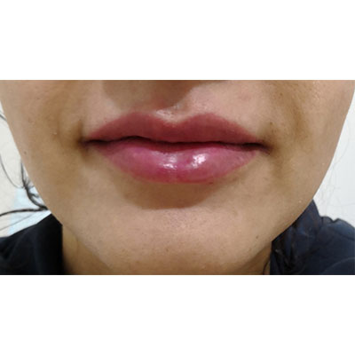 After Lip Filler Treatment - 14