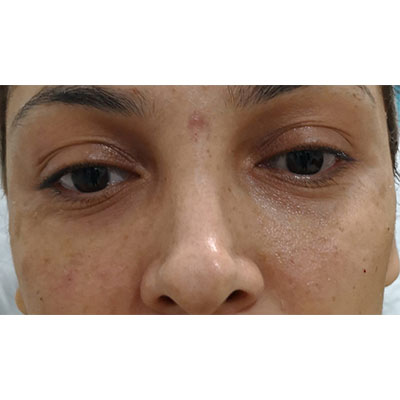 After Under Eye Filler Treatment -13