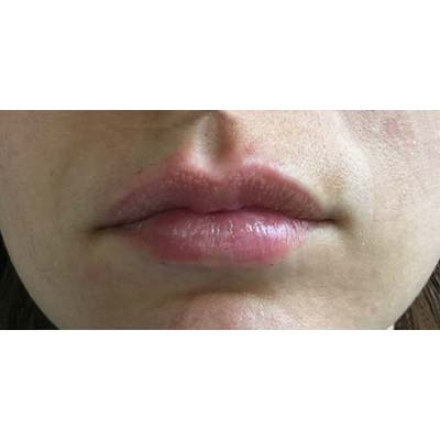 After Lip Filler Treatment - 21