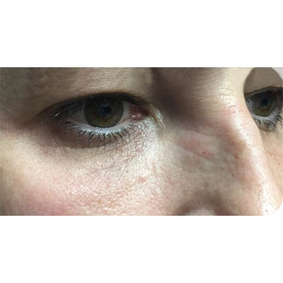After Under Eye Filler Treatment - 20