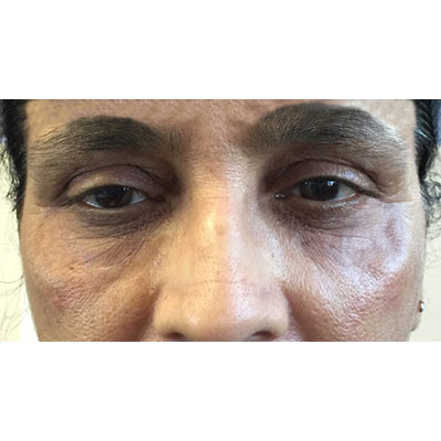 After Under Eye Filler Treatment -19