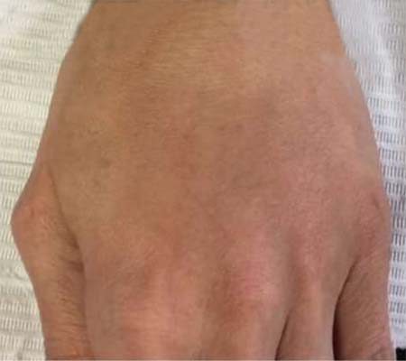 After Hand Filler Treatment - 25
