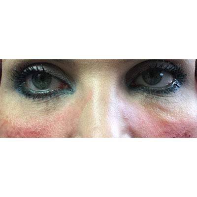 After Under Eye Filler Treatment - 16