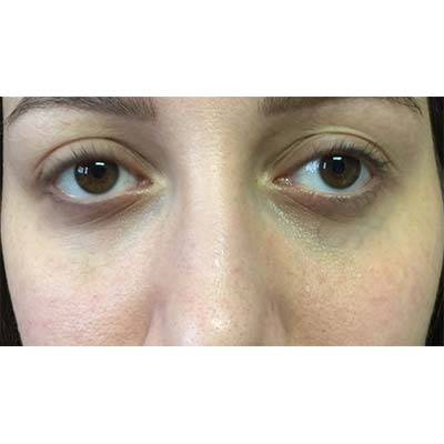 After Under Eye Filler Treatment - 24