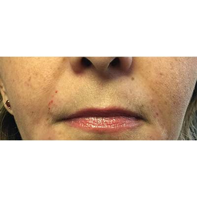 After Nasolabial Filler Treatment - 22