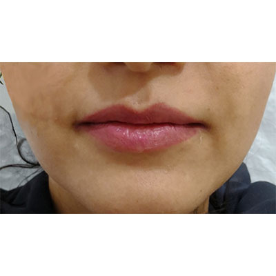 Before Filler Treatment - 14