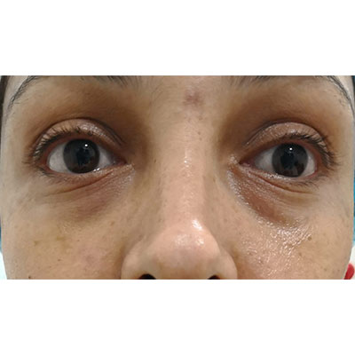 Before Under Eye Filler Treatment - 13