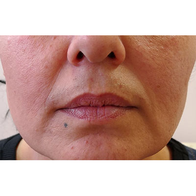 Before Nasolabial Filler Treatment - 23