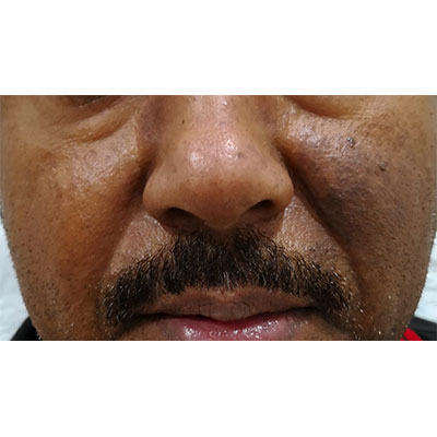 Before Nasolabial Filler Treatment - 12