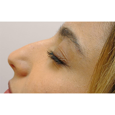 Before Nose Filler Treatment - 26
