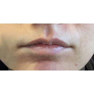 Before Lip Filler Treatment - 21