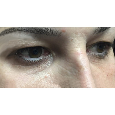 Before Under Eye Filler Treatment - 20