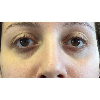 Before Under Eye Filler Treatment - 24