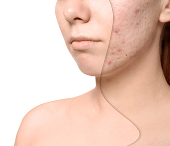 Understanding the process of acne treatment in Mississauga, ON