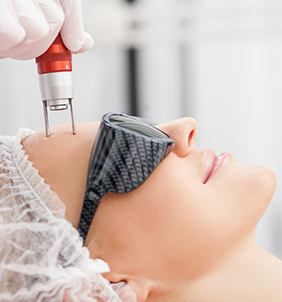Co2 Laser Resurfacing In Mississauga, ON