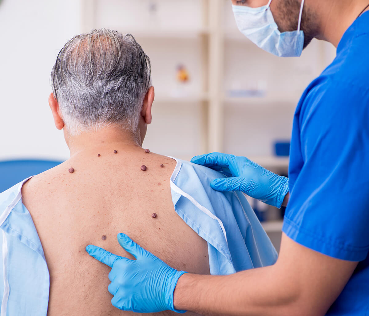 Mississauga dermatology practice provides multiple mole removal techniques